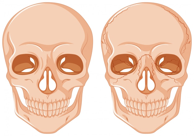 白い背景の上の2つの頭蓋骨