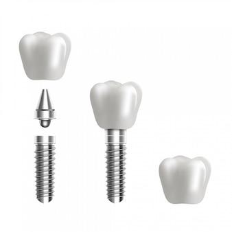 歯科用インプラントの構造図。 3 dのリアルな背景。