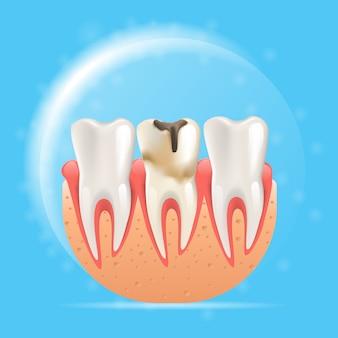 リアルなイラストエナメル虫歯3 dベクトル
