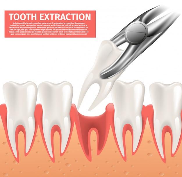 Реалистичная иллюстрация удаление зуба вектор 3d