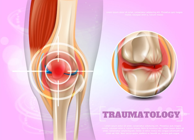 Реалистичная иллюстрация травматология медицина в 3d