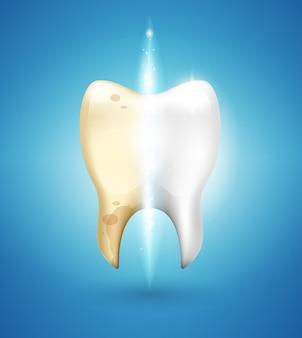 Отбеливание зубов в 3d стиле. чистка зубов от зубного камня и кариеса.