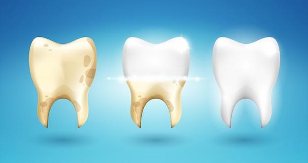 Зубная чистка зубов в 3d стиле.