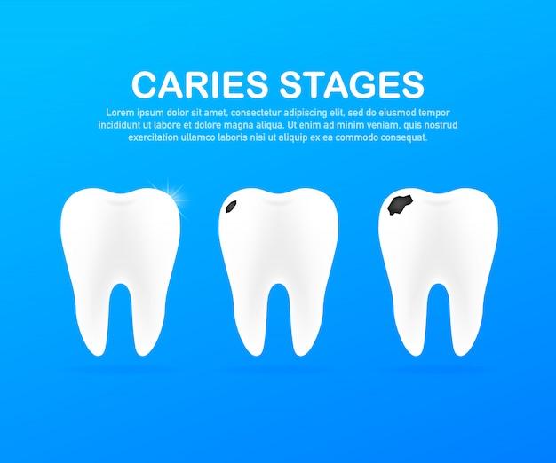 虫歯の発達段階。歯科医療のコンセプト。健康な歯。