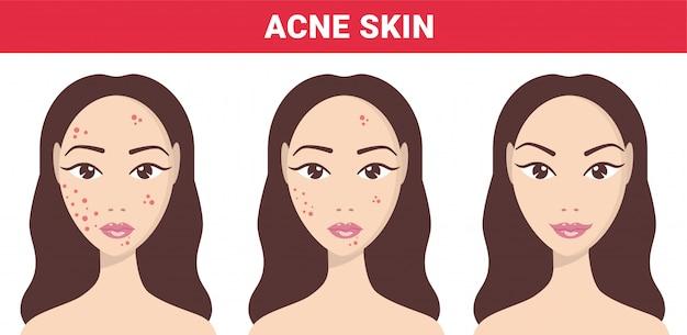 にきび、肌の問題、にきびの段階。ステップをクリアする女性のニキビ肌