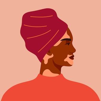 ターバンを身に着けている白斑を持つ黒人女性の肖像画。図