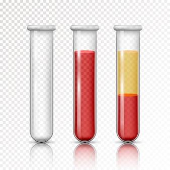 血漿とレイヤーの赤血球