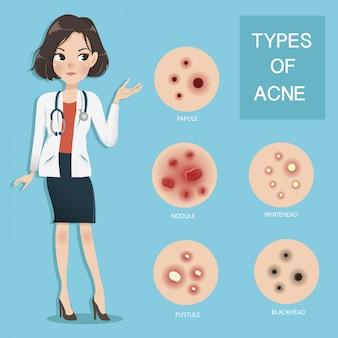 女性医師はにきびの各タイプの特性を説明します。