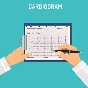 医者の手でクリップボードに心電図