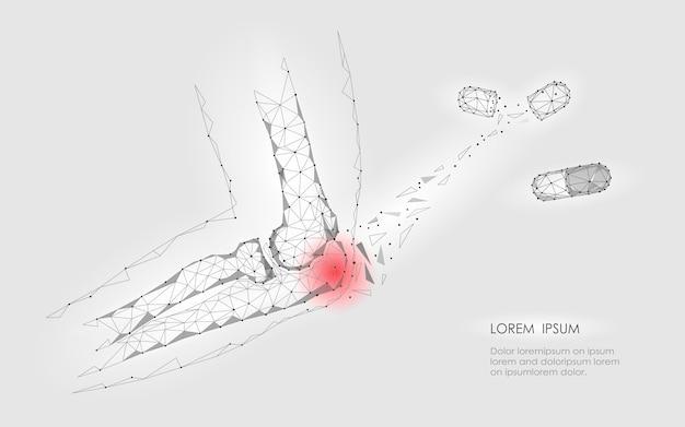 Капсульное лекарство от болезни локтевого сустава. красная область боли низкополигональная медицина будущего