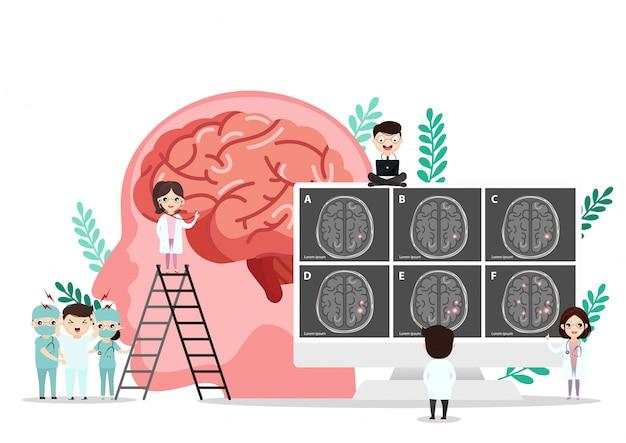 Научная медицинская иллюстрация инсульта человеческого мозга