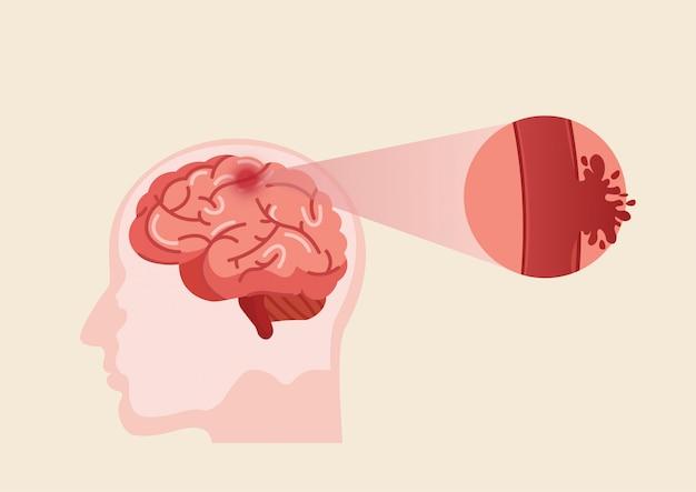 Иллюстрация инсульта человеческого мозга.