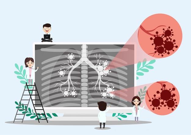 肺器官の解剖学のシンボル
