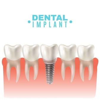 歯科インプラントモデルの側面図ポスター