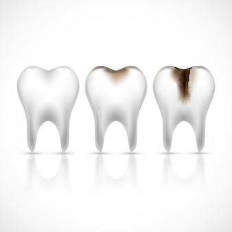 現実的な歯の歯