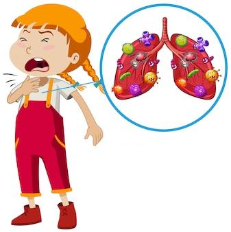 Вектор детской инфекции