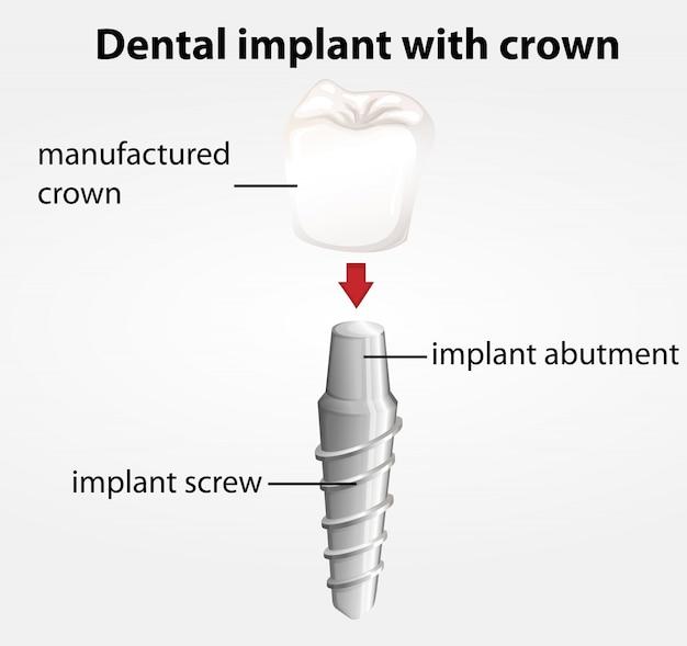 クラウンを備えた歯科インプラント