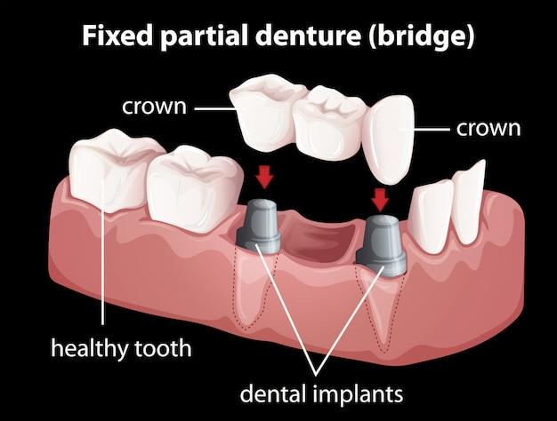 固定部分義歯