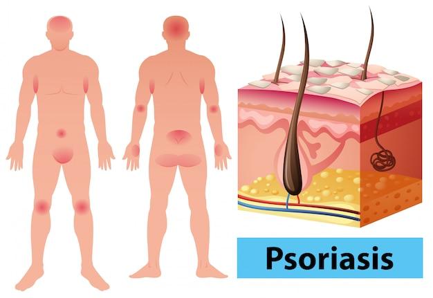 ヒトにおける乾癬を示す図