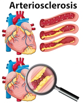 白い背景の動脈硬化症を伴う心臓