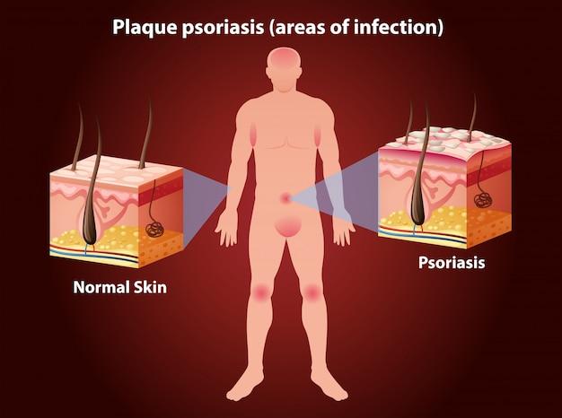 ヒトにおけるプラーク乾癬を示す図