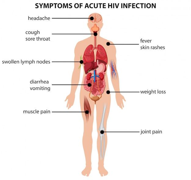 Диаграмма, показывающая симптомы острой вич-инфекции