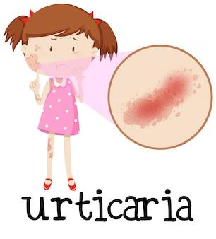 蕁麻疹の若い少女