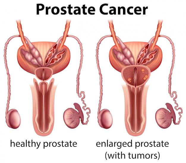 健康と前立腺癌の比較