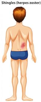 背中の帯状疱疹のある男