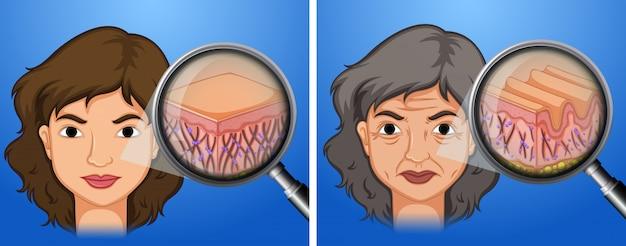 女性の若い肌と老化した肌