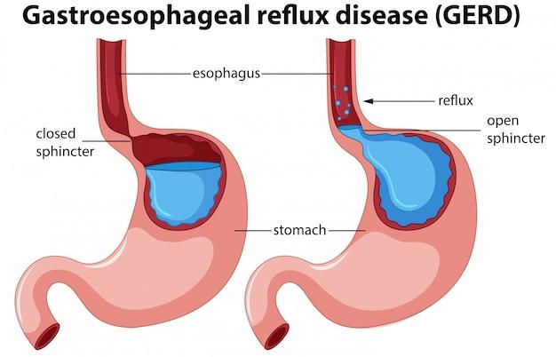 胃食道逆流症の解剖学