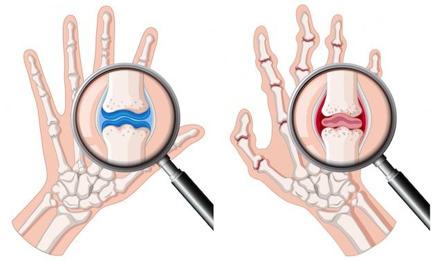 関節リウマチのある人の手