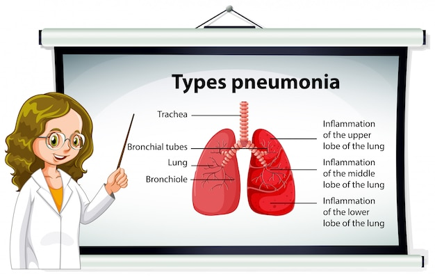 肺炎の種類を説明する医者