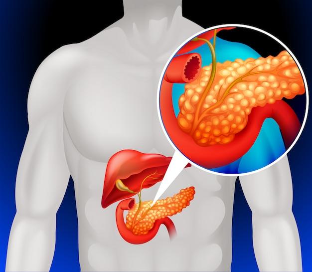 人間の膵臓をズームアウト