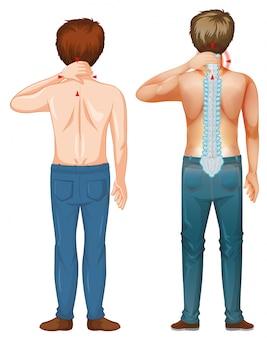 Человек с болями в спине на белом