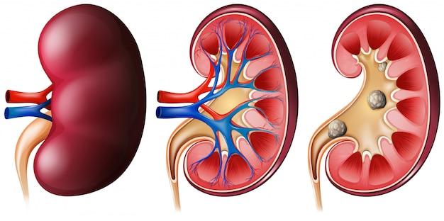 白に設定された腎臓