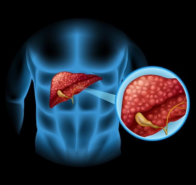 Диаграмма склероза в организме человека