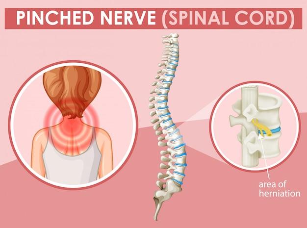 Диаграмма, показывающая сдавленный нерв у человека