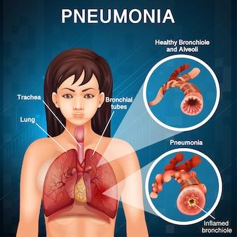 Дизайн плаката по пневмонии с легкими человека