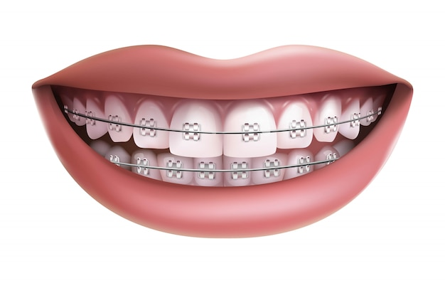 Изолированные на белом фоне, улыбка с белыми зубами и брекеты.