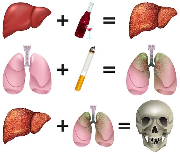 Алкоголь и курение связаны с преждевременной смертью во многих случаях рака. человеческие органы печень, легкие, череп