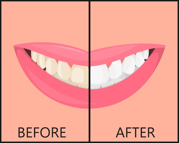 美しい雪の笑顔と歯、唇の女の子、口が分離されています。医療口腔病学。