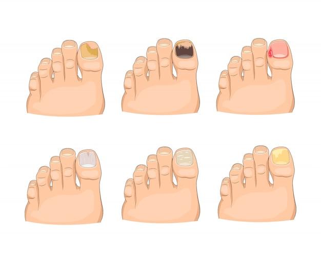 Болезни ногтей в мультяшном стиле