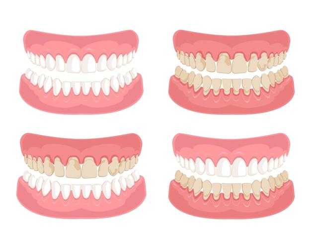 健康で不健康な汚れた歯。