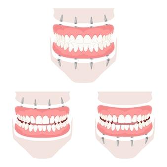 上顎と下顎の取り外し可能な義歯。