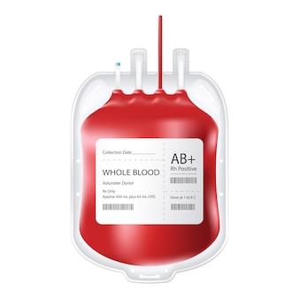Полный контейнер для крови.