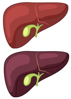 健康と肝硬変の肝臓