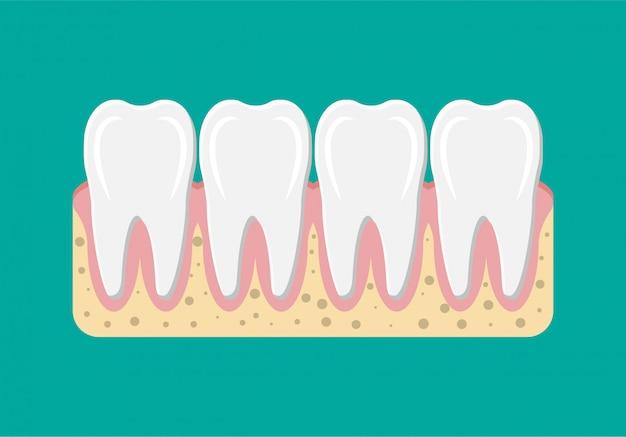 Зуб с десной.