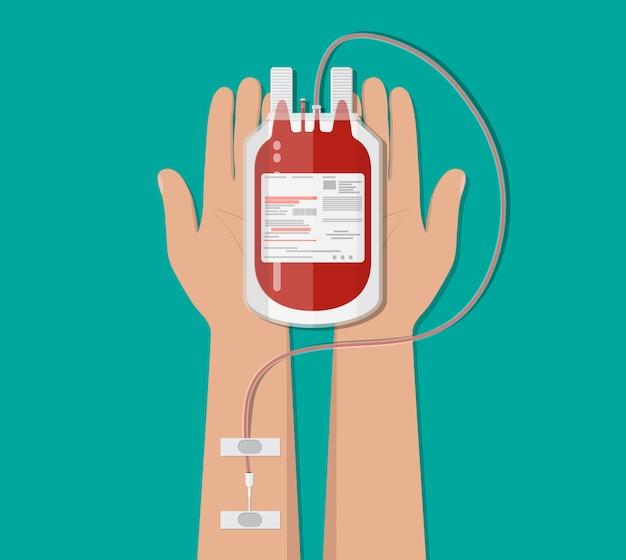 Сумка с кровью и рукой донора. концепция пожертвования