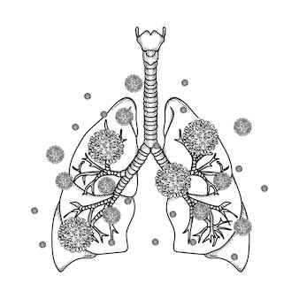 Иллюстрация легких с коронавирусом